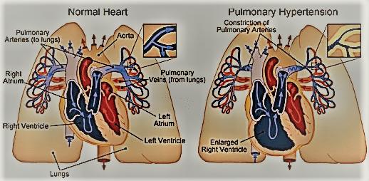 Primary Pulmonary Hypertension